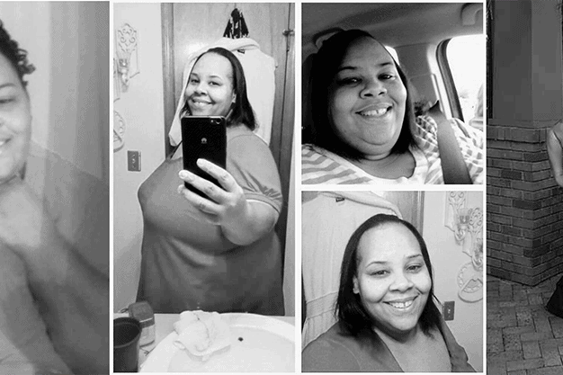 life after weight loss surgery- my story