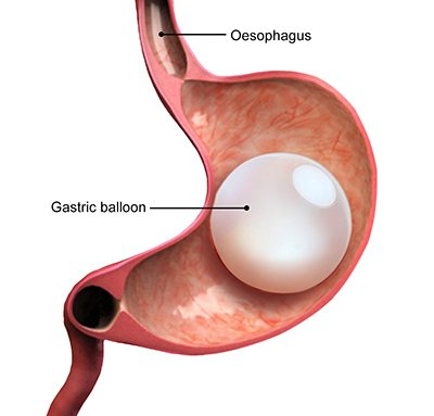 Gastric Balloon bariatric procedure in Georgia