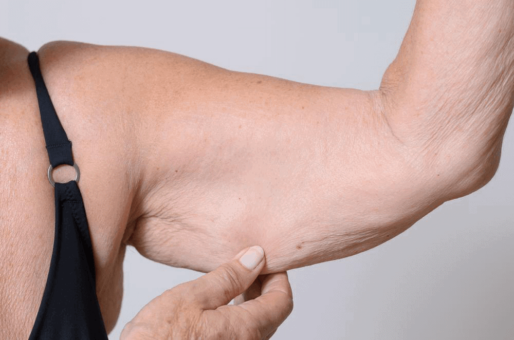 Excess skin after bariatric surgery