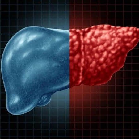 fatty liver disease and obesity